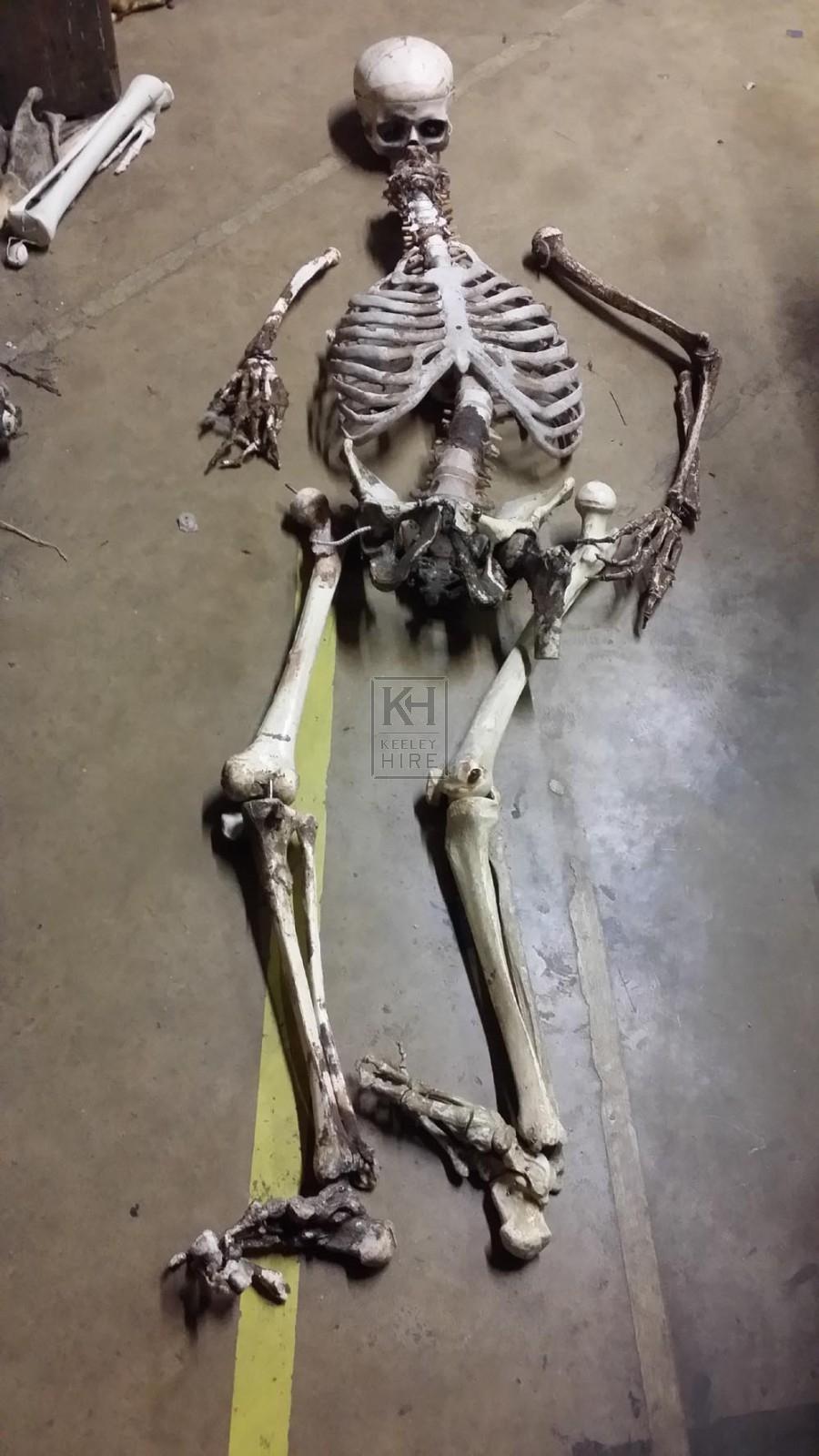 Skeleton remains inc skull